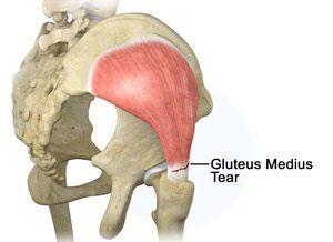 Gluteus Medius Tear Treatment Houston | Gluteus Medius Endoscopic ...