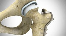 Hip Preservation Surgery Houston | Youth Sports Medicine